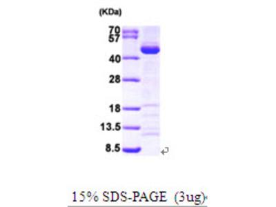 SAE1, 1-346aa, Human, His-T7 tag, E Coli