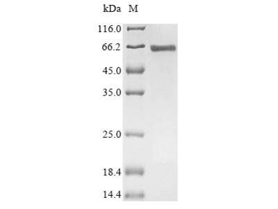 Recombinant Human Serum response factor (SRF)