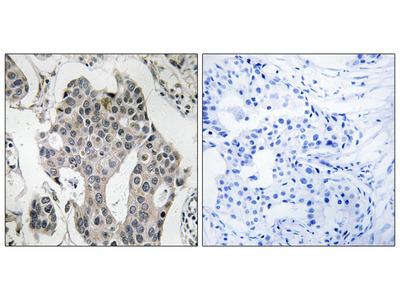 RAB3GAP2 Antibody