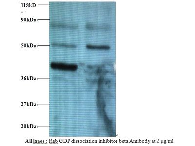 Rabbit anti-human Rab GDP dissociation inhibitor beta polyclonal Antibody, Biotin conjugated