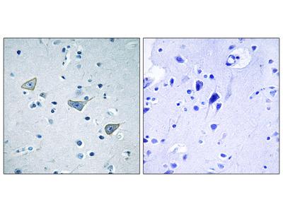 GPR158 Antibody