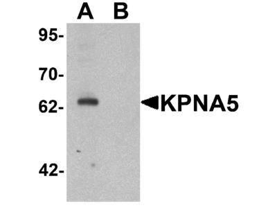 KPNA5 Antibody