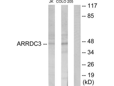 ARRDC3 Antibody