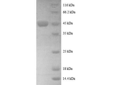 Recombinant human ADP-ribosylation factor-like protein 2