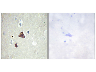 ADCY8 Antibody