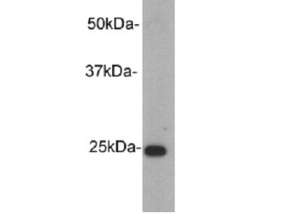 Rabbit IgG Kappa Light Chain Antibody