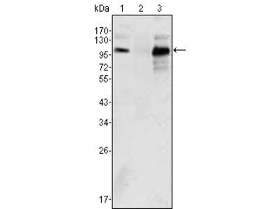 Androgen receptor Antibody
