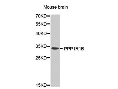 PPP1R1B Polyclonal Antibody