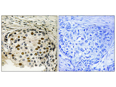 OSR1 (Phospho-Thr185) Antibody