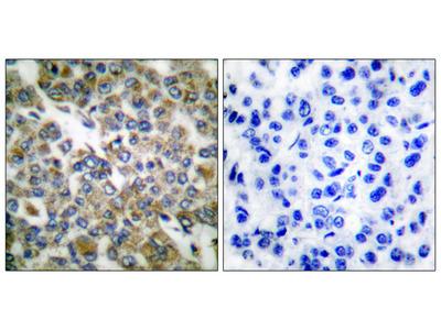 Keratin 14 Antibody