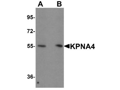 KPNA4 Antibody
