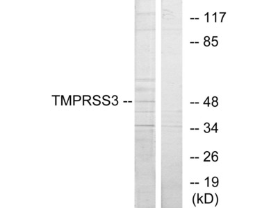 TMPRSS3 Antibody