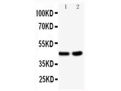 Anti-BCAT1 antibody