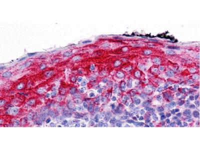 ZMYM4 Antibody