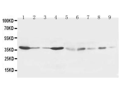 Anti-Hex antibody