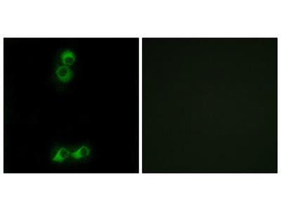 OR10J5 Antibody