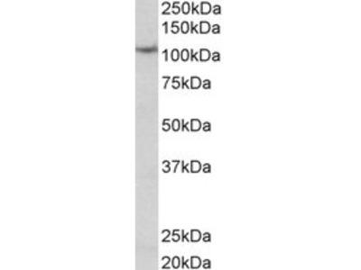 Goat anti-thyroid peroxidase Antibody