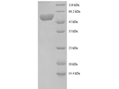 Recombinant human Spermidine synthase