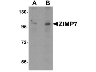 ZIMP7 Antibody