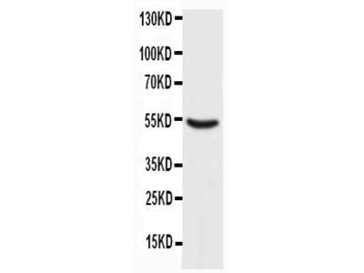 Anti-p53 antibody (monoclonal)
