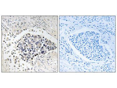 CPNE8 Antibody