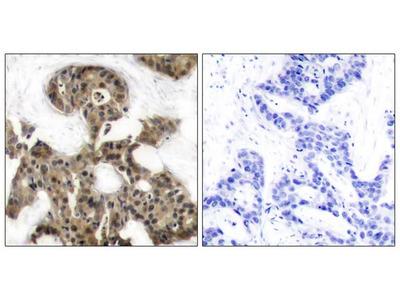 4E-BP1 (Ab-45) Antibody