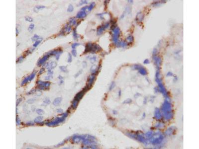Anti-beta-HCG antibody (monoclonal)