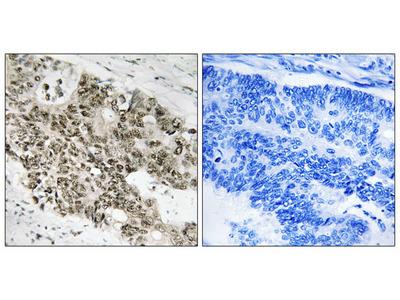 ATR (Ab-428) Antibody