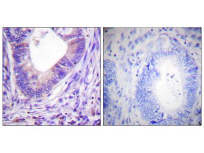 PKA alpha/beta CAT (Ab-197) Antibody