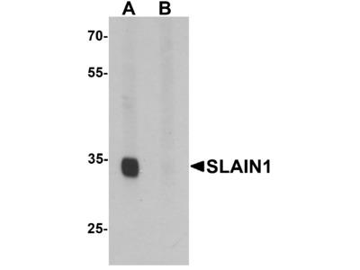 SLAIN1 Antibody