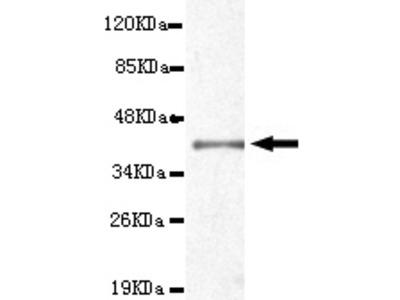 TTR Antibody