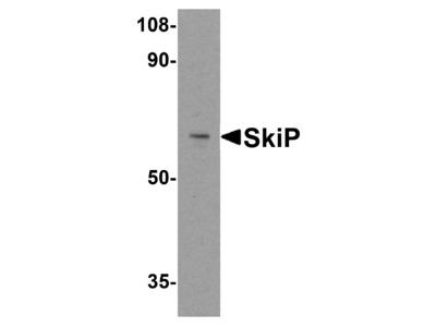 SkiP Antibody