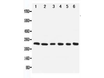 Anti-Apoptosis repressor with CARD antibody