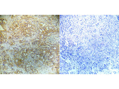 4E-BP1 (Phospho-Ser65) Antibody