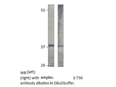 Tumor protein D52 (CP1) N-epitope antibody