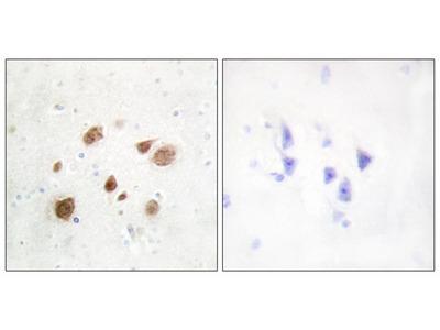 CaMK1-beta Antibody