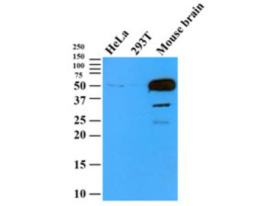 TUBB2b antibody (AT5B3)