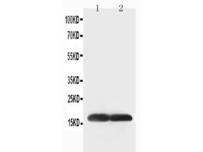 Anti-Superoxide Dismutase 1 antibody