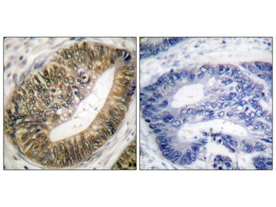 4E-BP1 (Phospho-Thr69) Antibody