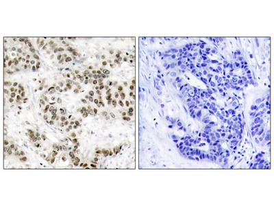 SAPK/JNK (Ab-185) Antibody