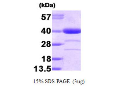 Alcohol dehydrogenase, 1-325aa, Human, E Coli