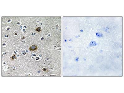 AKAP1 Antibody