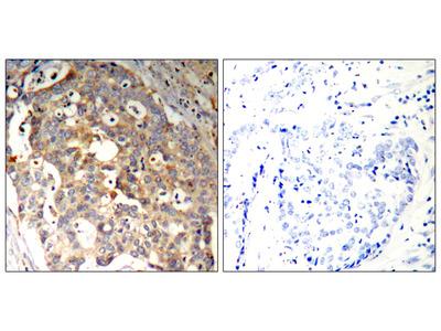 SAPK/JNK (Ab-183) Antibody