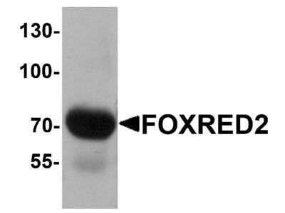 FOXRED2 Antibody