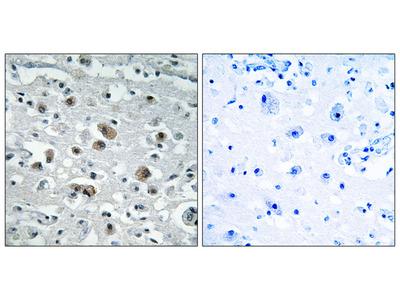GASP1 Antibody