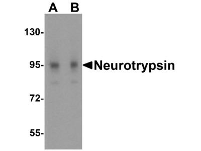 Neurotrypsin Antibody