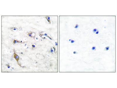 JM4 Antibody