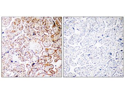 CCDC102B Antibody