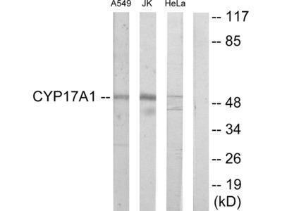 Cytochrome P450 17A1 Antibody