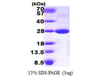LYPLA1, 1-230aa, Mouse, His tag, E Coli